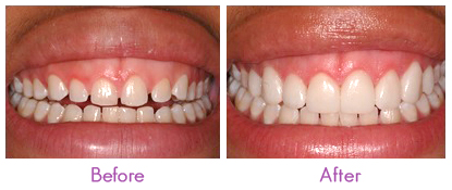 How much do porcelain veneers cost joyfulteeth how much do porcelain veneers cost solutioingenieria Image collections