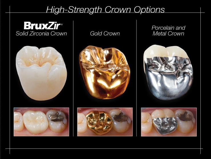 假牙材質的比較 丰采美學牙醫